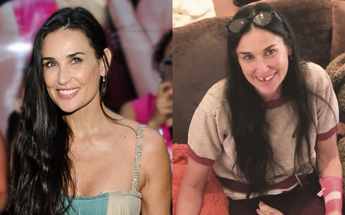 demi-moore-is-toothless-1