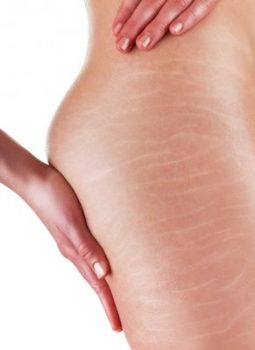 Stretch marks and cellulite